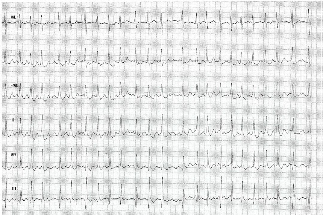 Aufzeichnung eines Elektrokardiogramms.