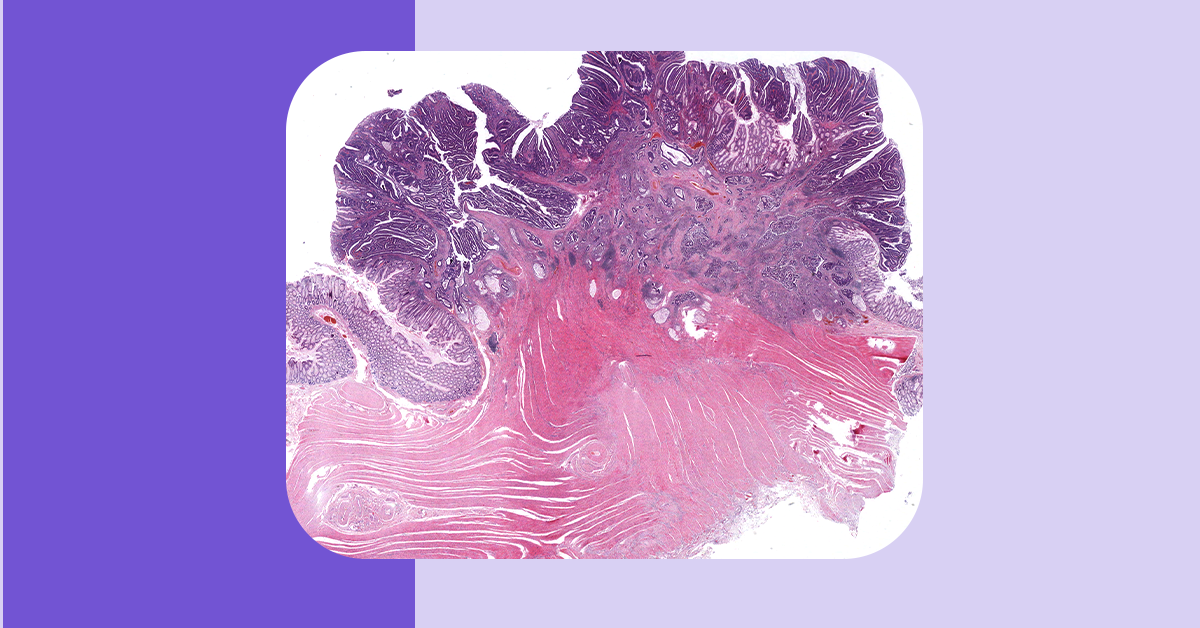 Histology image related to Step 1 study