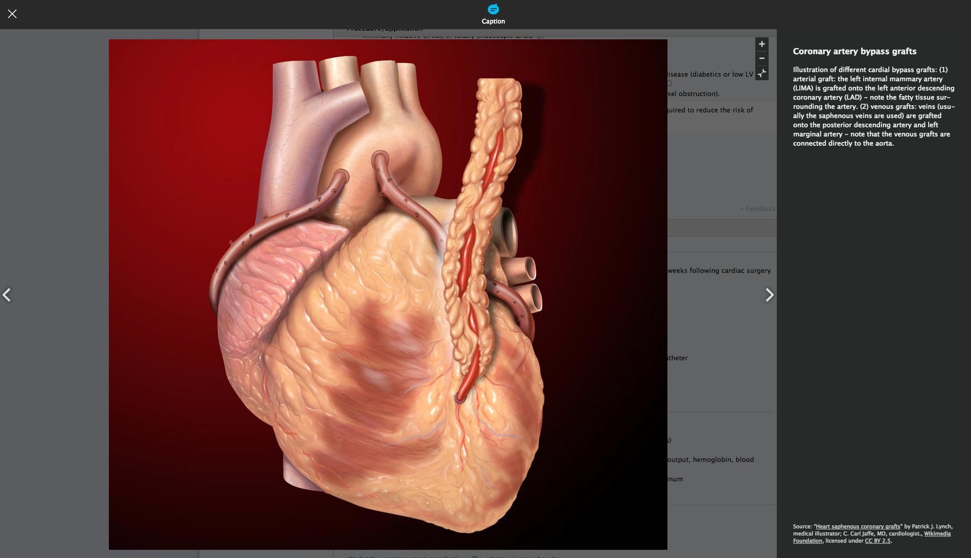 coronary+artery+(2)